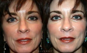 See more Rejuvent Lower Eyelid Blepharoplasty Photos