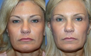 See more Rejuvent Upper Eyelid Blepharoplasty Photos