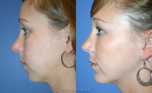 See more Rejuvent Chin Augmentation Photos
