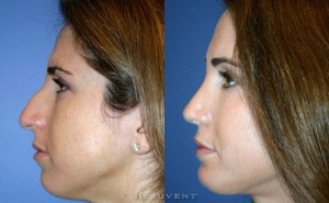 See more Rejuvent Scottsdale Rhinoplasty Photos