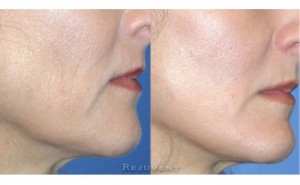 See more Rejuvent Dermaplaning Photos