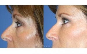 See more Rejuvent Under Eye Rejuvenation Photos