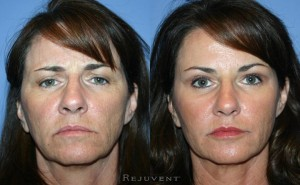 See more Rejuvent Liquid Facelift Photos