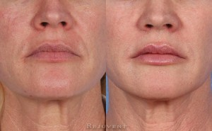 See more Rejuvent Microdermabrasion Photos