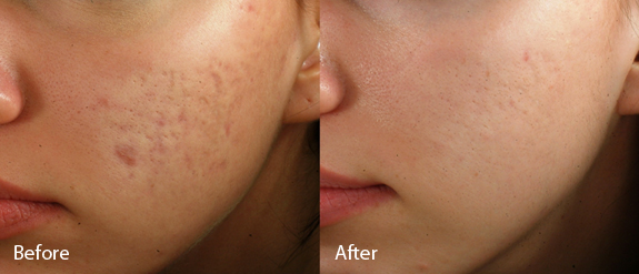 The after photo reflects progress after one month (three treatments).