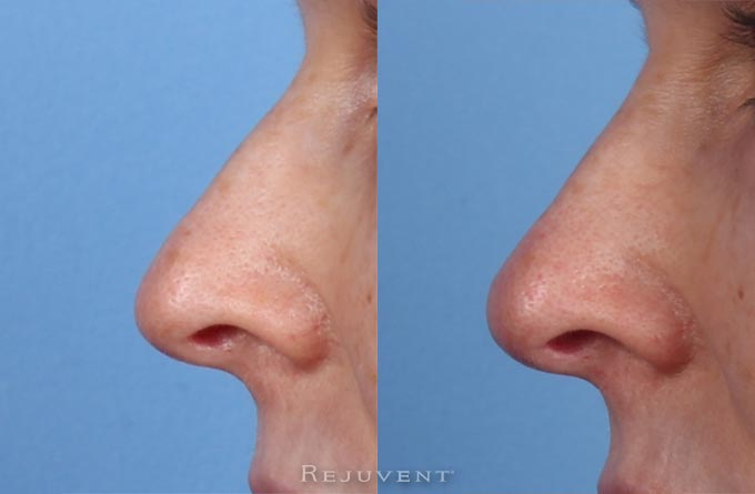 See more Rejuvent Non-Surgical Nasal Sculpting Photos