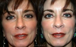 See more Rejuvent Lower Eyelid Blepharoplasty Photos