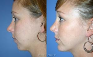 See more Rejuvent Chin Augmentation Photos