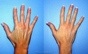 See more Rejuvent Hand Fillers Photos