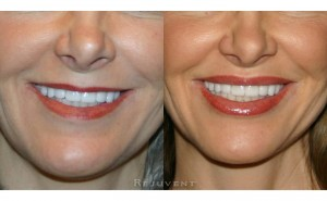 See more Rejuvent Lip Enhancement Photos