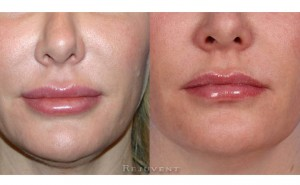 See more Rejuvent Filler Corrections Photos