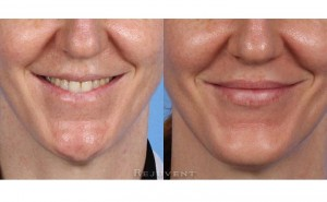 See more Rejuvent Non-Surgical Chin Augmentation Photos