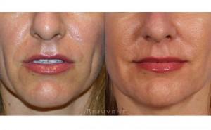 See more Rejuvent Medical Facials Photos