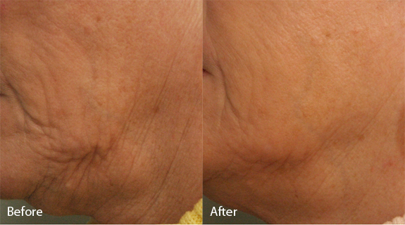 The after photo reflects progress after two treatments.