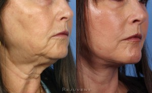 See more Rejuvent Face - Neck Lift Photos